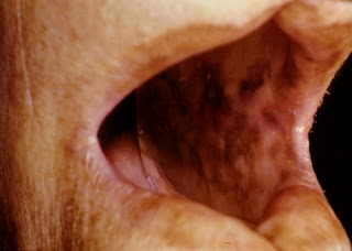 addison s disease hypocortisolism Addison's disease is also called chronic adrenal insufficiency, primary adrenal insufficiency, primary failure adrenocortical insufficiency or hypocortisolism.