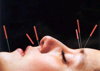 http://3.bp.blogspot.com/-3DLo5ws6KVM/TtUuJ_0HZ2I/AAAAAAAAAJc/Jge0thCqNBo/s320/acupuncture_face.jpg