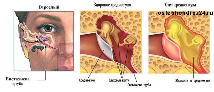 Воспаление среднего уха симптомы лечение в домашних
