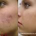2 Mascarillas para combatir el acné de manera efectiva