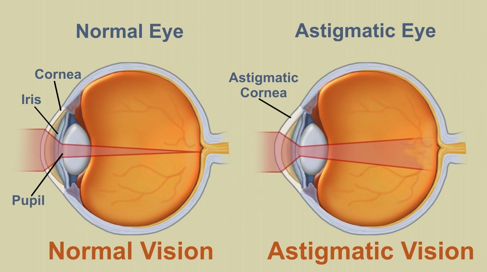 astigmatism causes, symptoms, diagnosis, treatment, prevention, Cephalic Vein