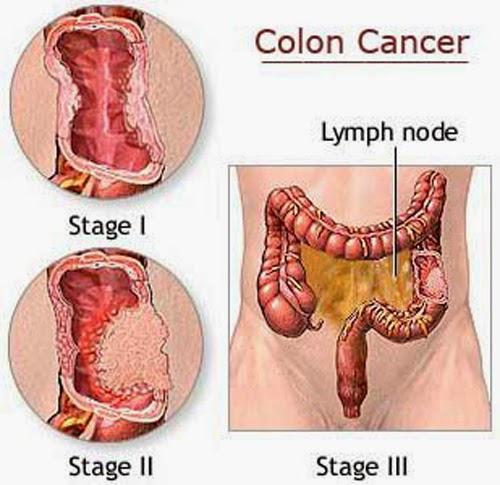 Obat Tradisional Kanker Usus Besar