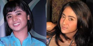 artis indonesia operasi plastik sebelum dan sesudah