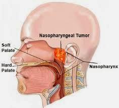 Obat Kanker Nasofaring