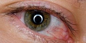علاج انتفاخ و احمرار العينين طبيعيا