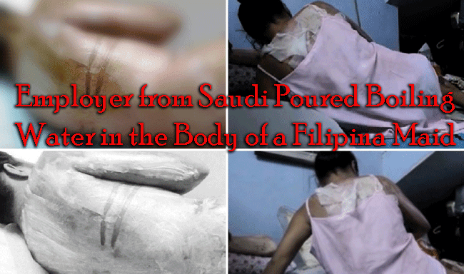 Employer from Saudi Poured Boiling Water in the Body of a Filipina Maid
