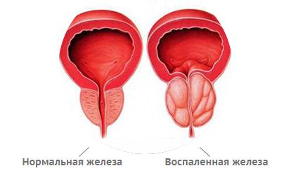 Лечение хронического микоза ногтей