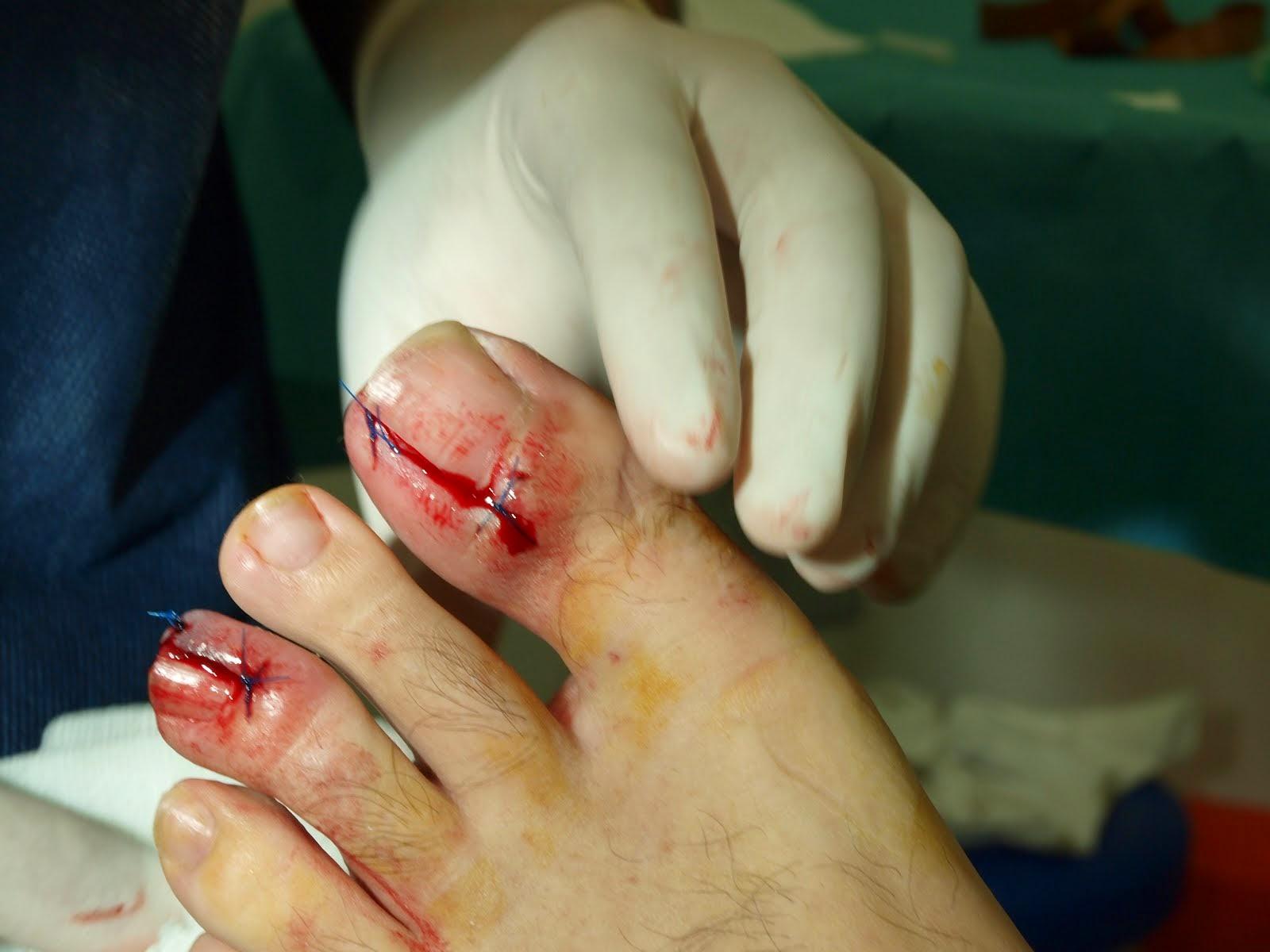 cirugía de uña encarnada