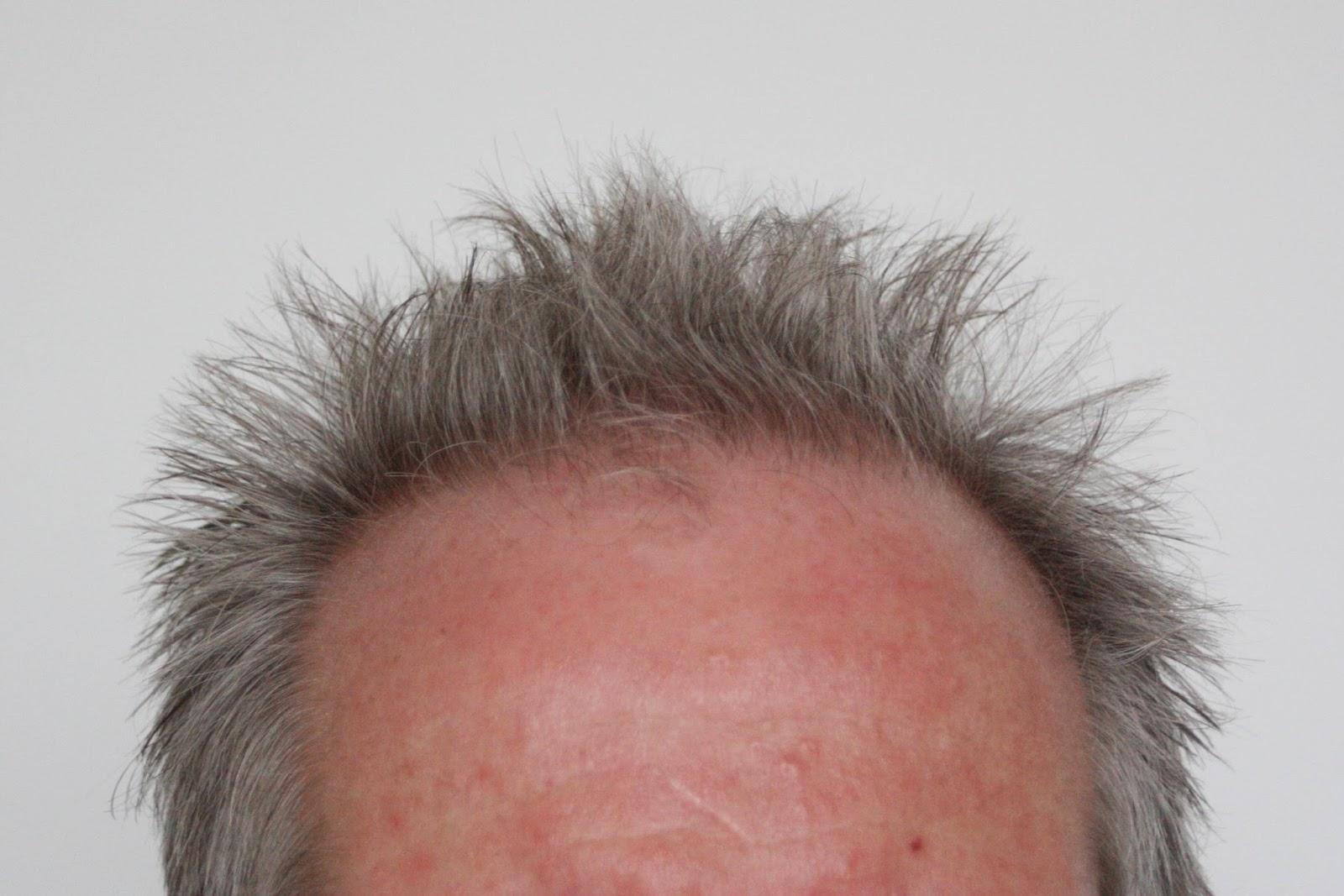 man's forehead