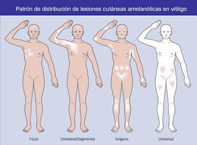 Tipos de Vitiligo
