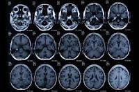 كيف يؤثر إدمان الترامادول على الدماغ