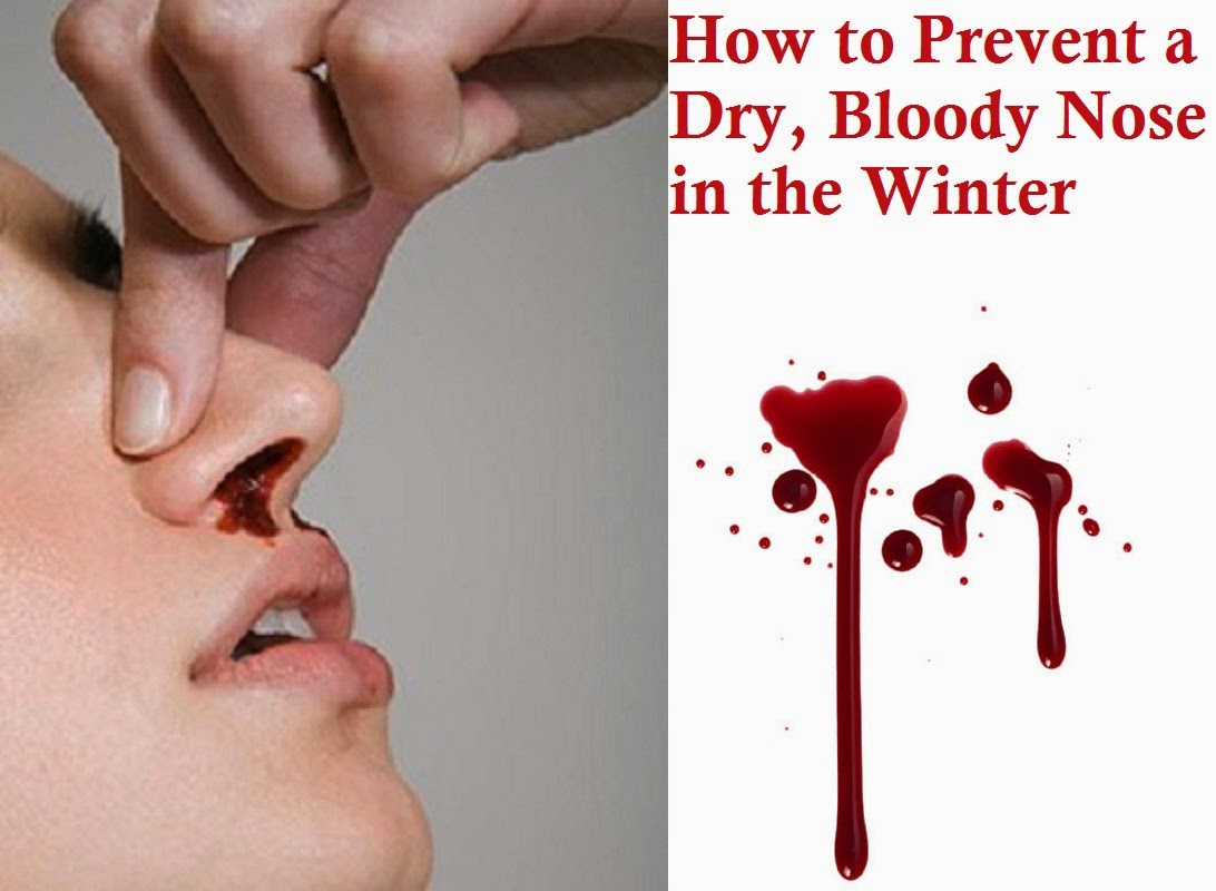How to Prevent a Dry Bloody Nose in the Winter #AF1C20
