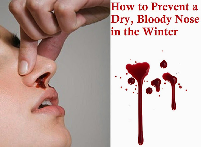 How to Prevent a Dry, Bloody Nose in the Winter