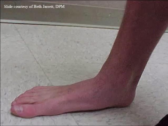 Foot Deformities in CT: June 2012 Ankle Pronation Surgery