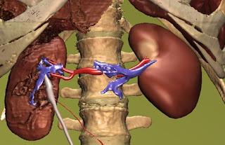 www.webunic.blogspot.com-5 Jenis Makanan Yang Bermanfaat Untuk Kesehatan Ginjal
