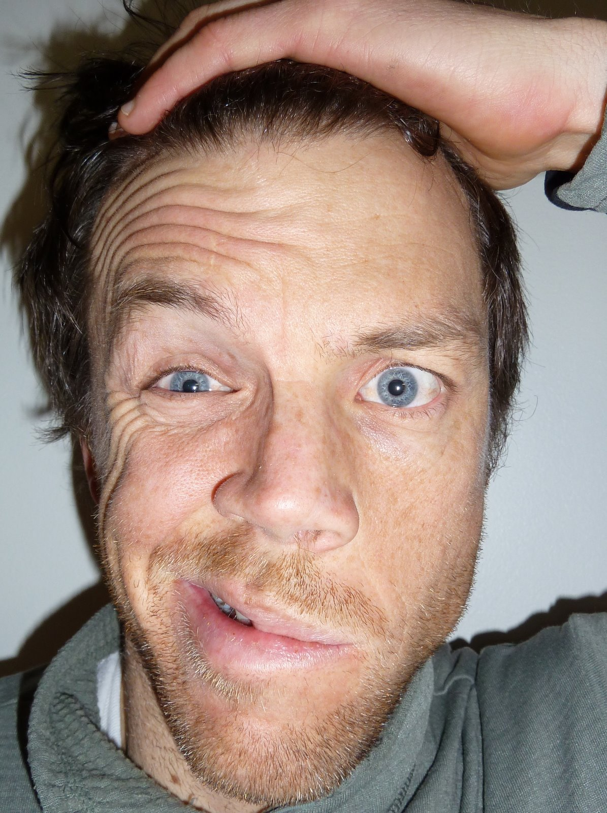 what is bell's palsy