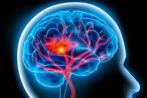 Manfaat vitamin C yang dapat mencegah stroke