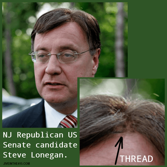 NJ GOP candidate for US Senate Steve Lonegan's photo clearly shows the threads that attach his wig.