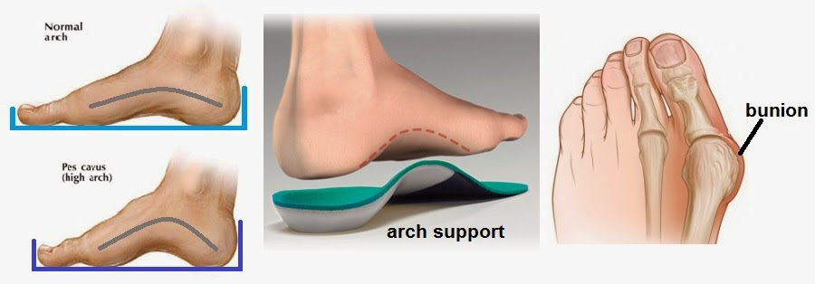 normal arch bunion support
