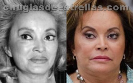Elba Esther Gordillo cirugía