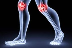 Key Ingredients Your Joint Pain Supplements Should Have
