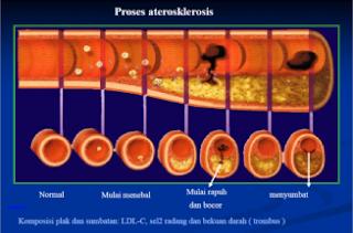 Obat Tradisional Arteriosclerosis