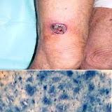 lesión en el muslo y biopsia