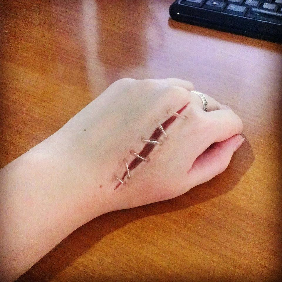 CreepyVel - the blog of creepy beauty: Open wound with stitches ...