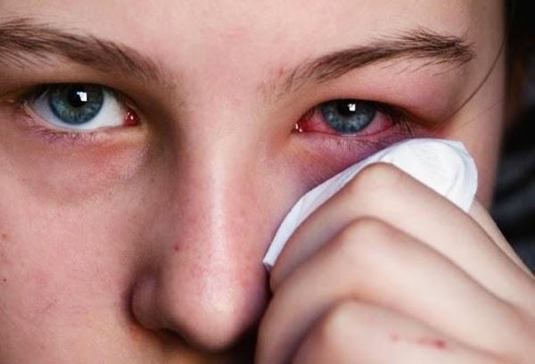 Phòng dịch đau mắt đỏ - Triệu chứng, Cách chữa trị bệnh đau mắt đỏ