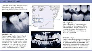 Types of dental X-ray