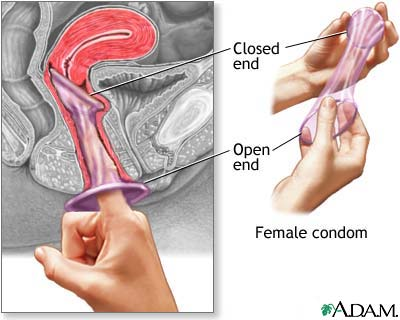 Female condoms - how to use a female condom AVERT