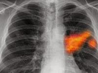 10 Peringatan Berbahaya Anda Memiliki Kanker