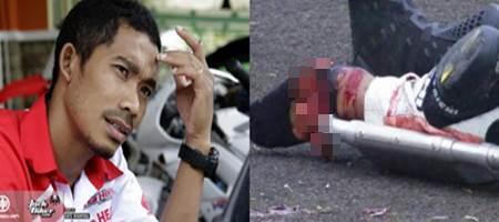 Video M. Fadli Saat Detik-Detik Kecelakaan Kakinya Terlindas Motor Pembalap Thailand