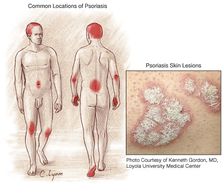 A lack of skin moisture worsens the symptoms of psoriasis 2