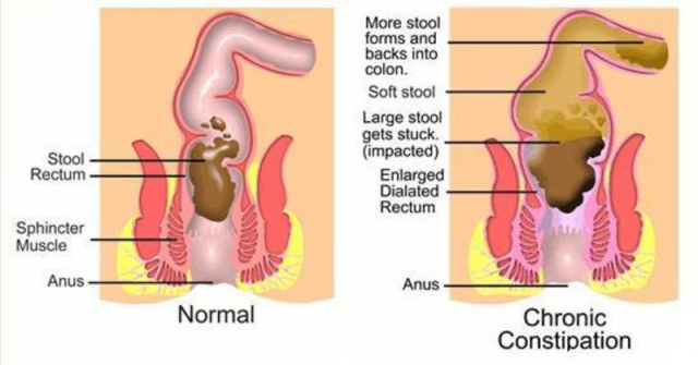 clean colon detox made at home