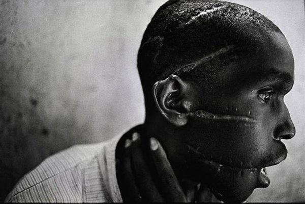 عجائب الدنيا وهل تعلم - قام بتصويرها جيمس نتشواي. هذه الصورة تحكي الإبادة الجماعية التي وقعت في رواندا. كان هذا الرجل من الهوتو في واحد من معسكرات الاعتقال والذي تعرض للتعذيب الوحشي. ثم تمكن من البقاء على قيد الحياة.