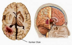 Waspadalah Gejala Kanker Otak, awas Gejala Kanker Otak