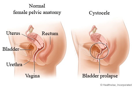 Baby Steps Vaginal Prolapse