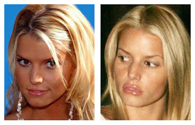 Jessica Simpson Plastic Surgery before And After