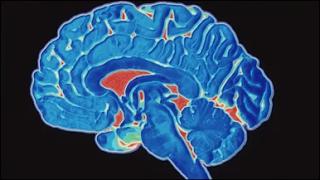 Alzheimer: problemas podem ser agravados durante a pandemia