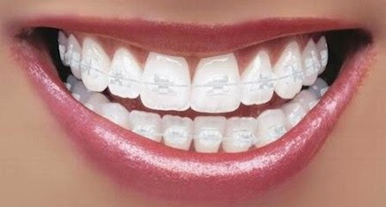 http://mumbaidentalcenter.com/orthodontics-ceramic-braces.php