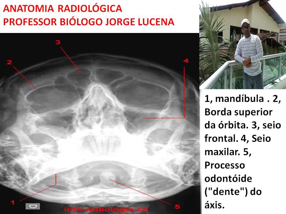 Hermosa Cráneo Radiología Anatomía De Base Ornamento - Imágenes de ...