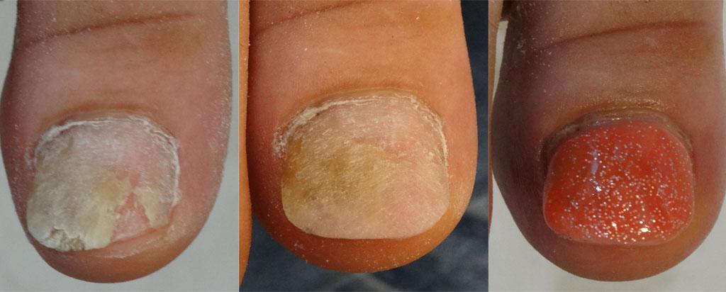 psoriasis ongle pied photo