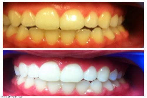 طريقة تبييض الاسنان بالملح - اسرع طريقة تبييض الاسنان .. اقرأ التفاصيل