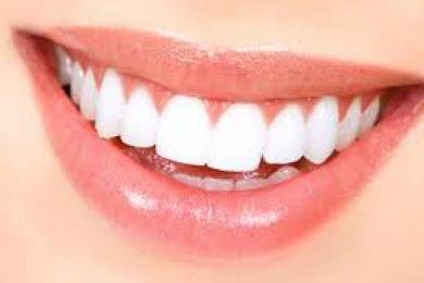 Tips Memutihkan Gigi Dengan Cuka Apel Campur Campur