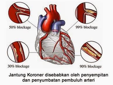 Waspada Terhadap Penyakit Jantung, gejala penyakit jantung, awas penyakit jantung