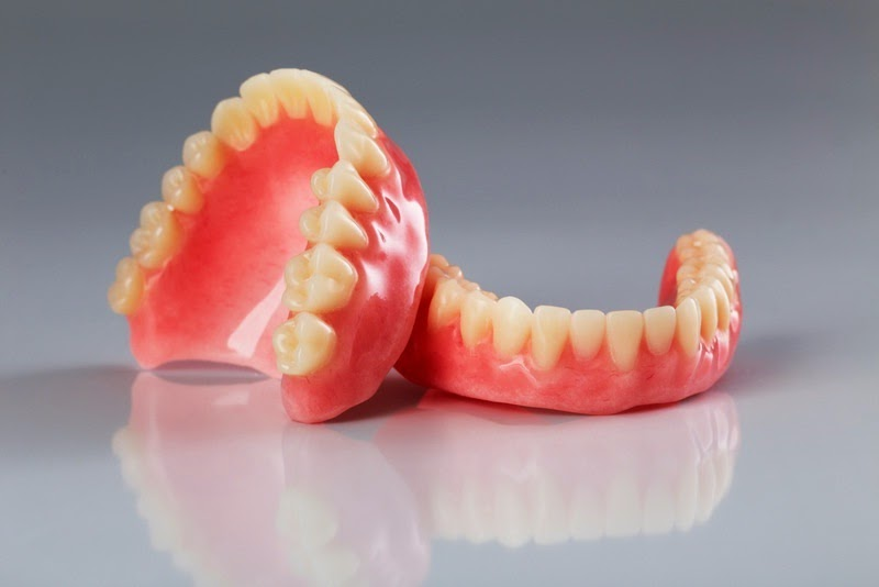 Newport Beach Dental Implants