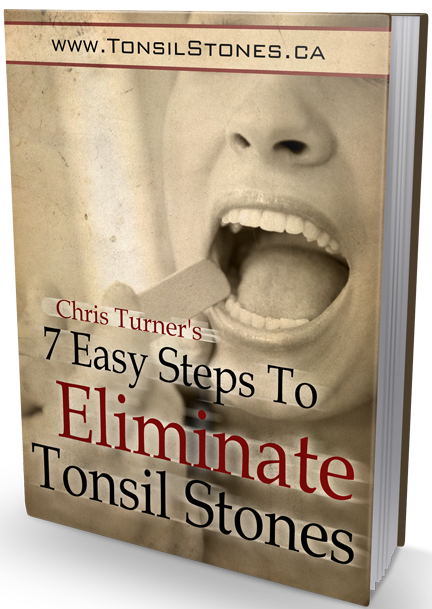 7-easy-steps-to-eliminate-tonsil-stones