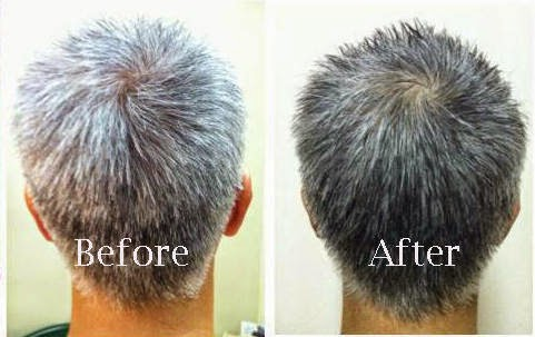 Wheatgrass Turns Gray Hair Back to Its Natural Color‏