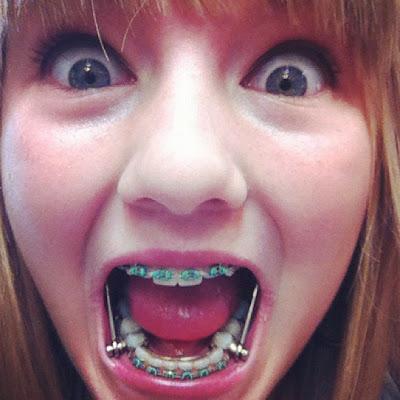 lustige bilder zahnspange - Frosch mit Zahnspange Bild FunFire